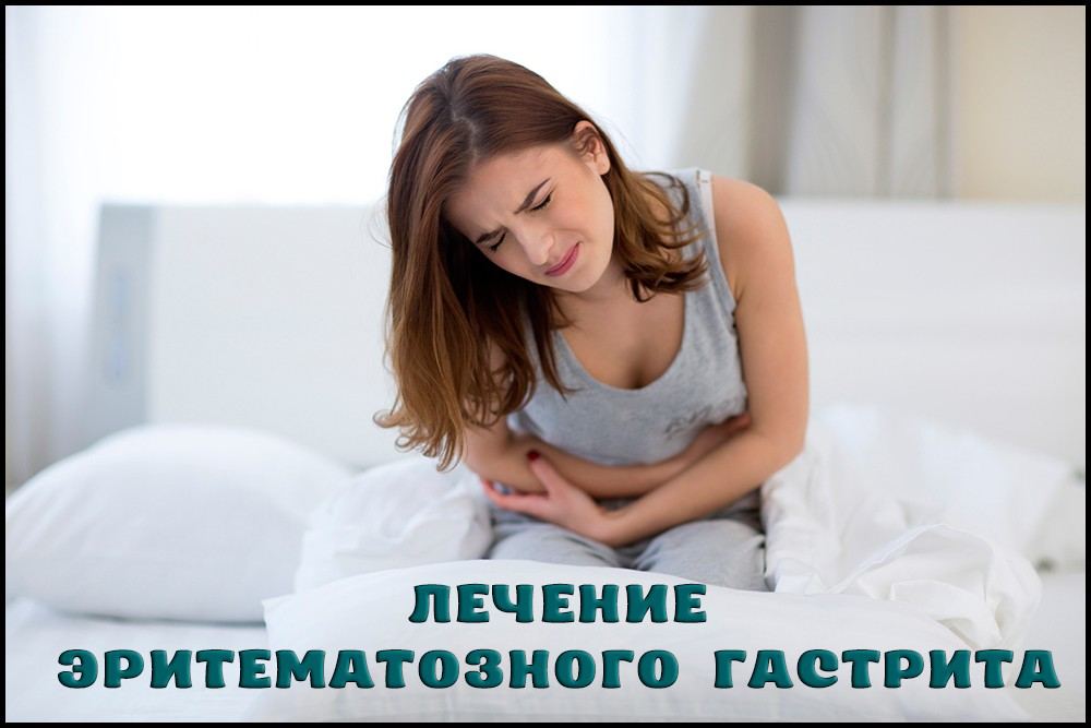 Лечениеэритематозного гастрита