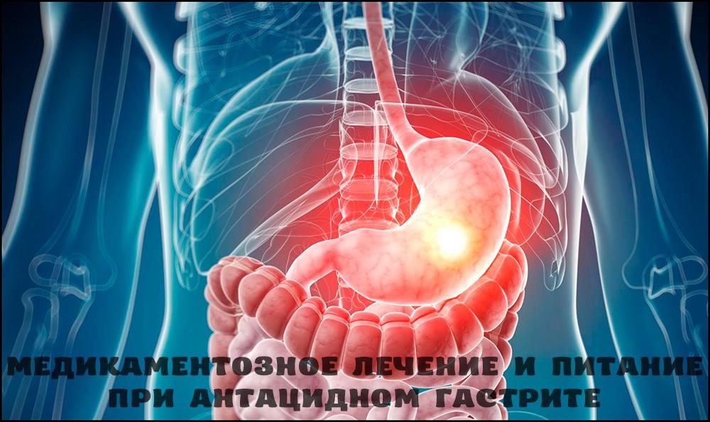 Медикаментозное лечение антацидного гастрита