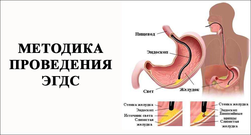 Гиперпластический гастрит - что это такое?