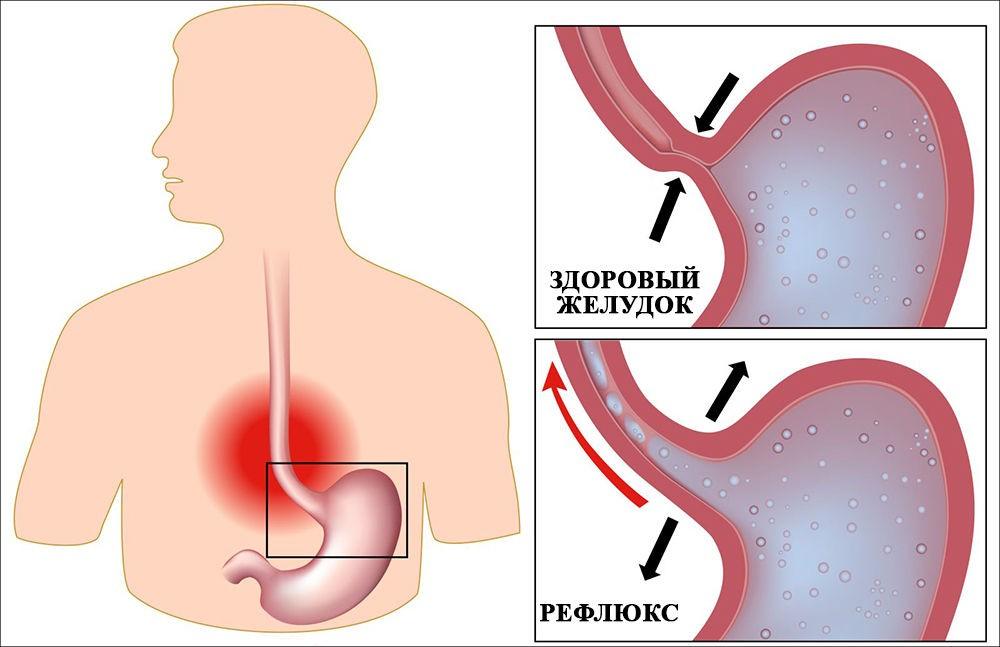 как лечить рефлюкс желудка