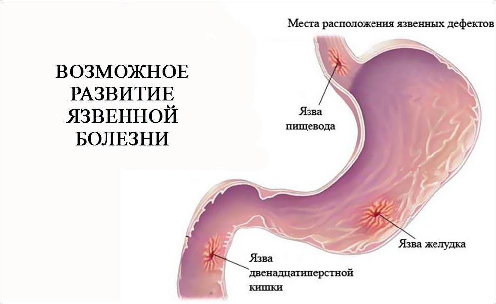 Возможное развитие язвенной болезни