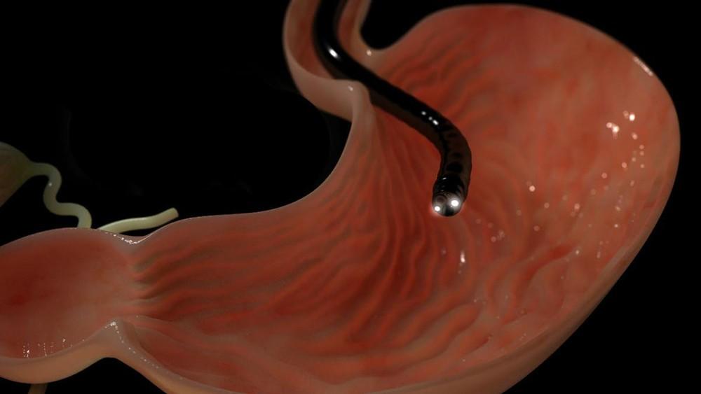 Эндоскопическое обследование желудка