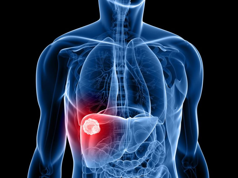 воспаление слизистой желудка