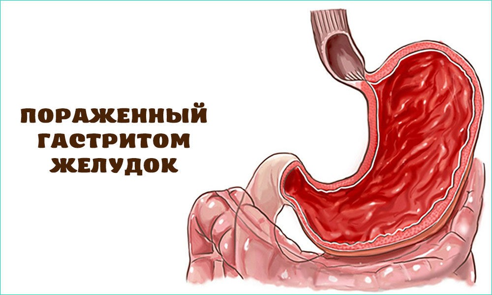 Пораженный гастритом желудок