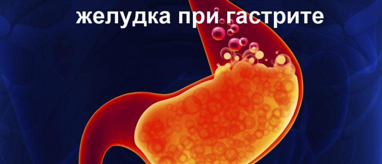 как определить кислотность желудка при гастрите