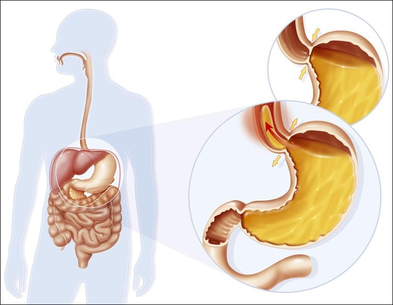 Заброс желудочного содержимого в пищевод